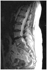 Multi-level Disc Disease Lumbar MRI